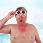 Comment Soigner les coups de soleil